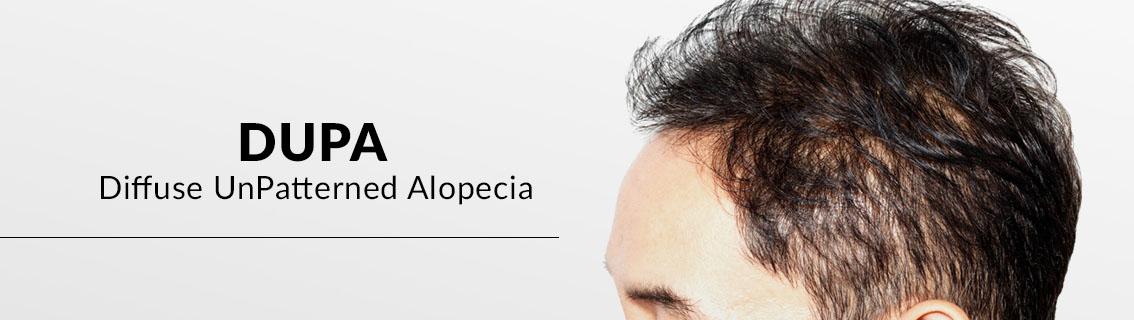 DUPA (DIFUSSE UNPATERNED ALOPECIA)