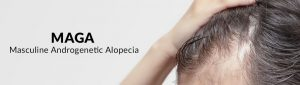 alopecia androgenética masculina