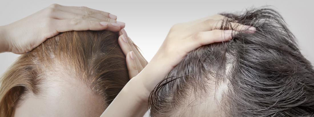 alopecia ou calvície