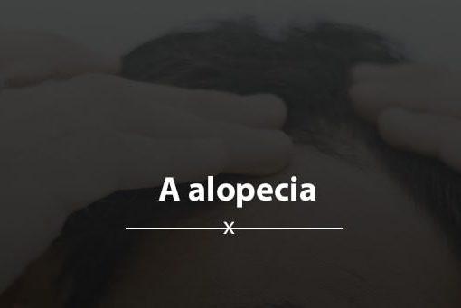 alopecia-min