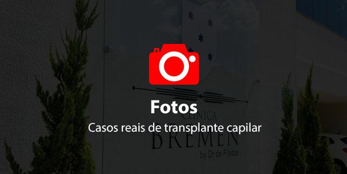 fotos de transplante capilar