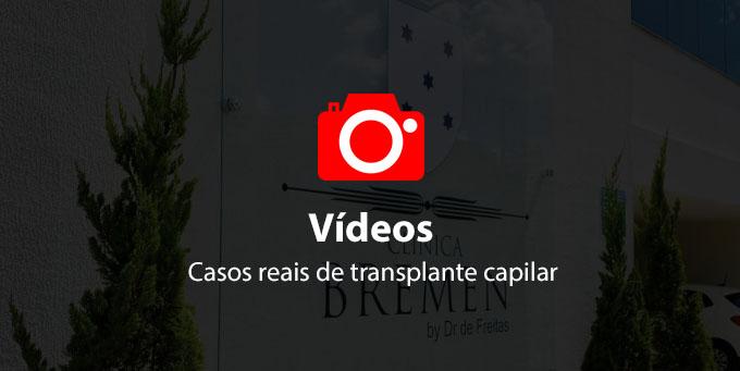 videos de transplante capilar