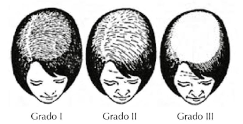 Classificação da alopecia