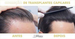 Correção de transplantes capilares