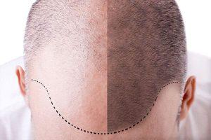 linha frontal do cabelo