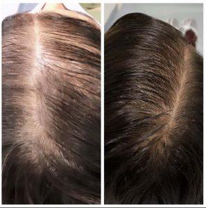 tratamento para perda de cabelo
