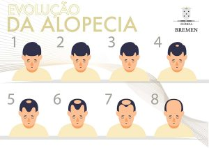 evolucao da alopecia